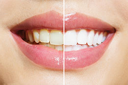 Teeth Whitening Palos Hills IL